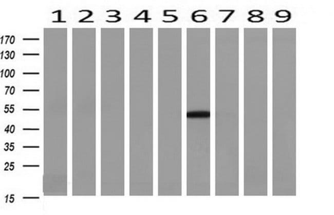 TASP1 Mouse anti-Human, Clone: OTI1H6, liquid, TrueMAB  100 µL; Unconjugated