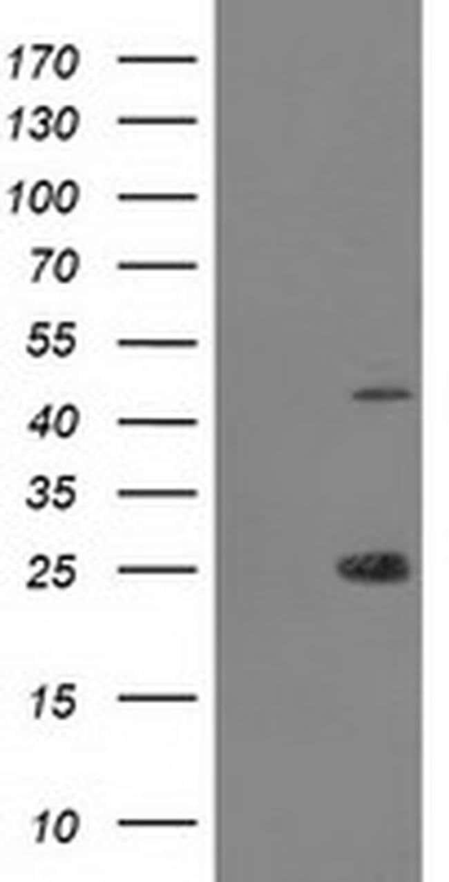 TASP1 Mouse anti-Human, Clone: OTI1C12, liquid, TrueMAB  100 µL; Unconjugated