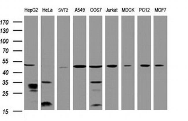 TBC1D13 Mouse anti-Human, Clone: OTI2C5, liquid, TrueMAB  100 µL;