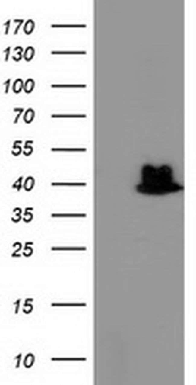 TBC1D21 Mouse anti-Human, Clone: OTI8B7, liquid, TrueMAB  100 µL;