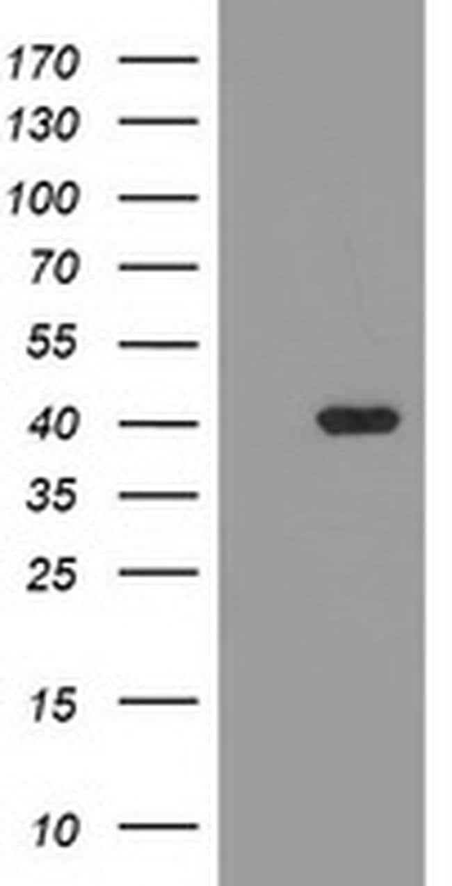 TBC1D21 Mouse anti-Human, Clone: OTI1A8, liquid, TrueMAB  100 µL;