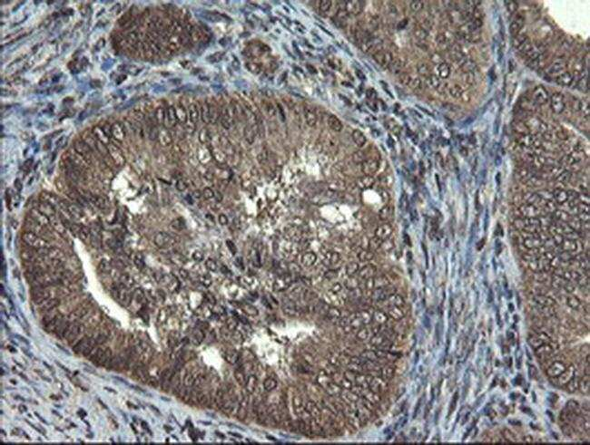 TBCC Mouse anti-Human, Clone: OTI2D1, liquid, TrueMAB  100 µL; Unconjugated