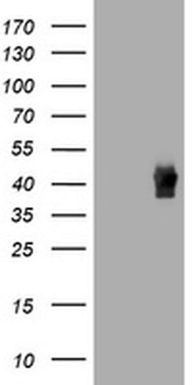 TBCC Mouse anti-Human, Clone: OTI1F2, liquid, TrueMAB  100 µL; Unconjugated