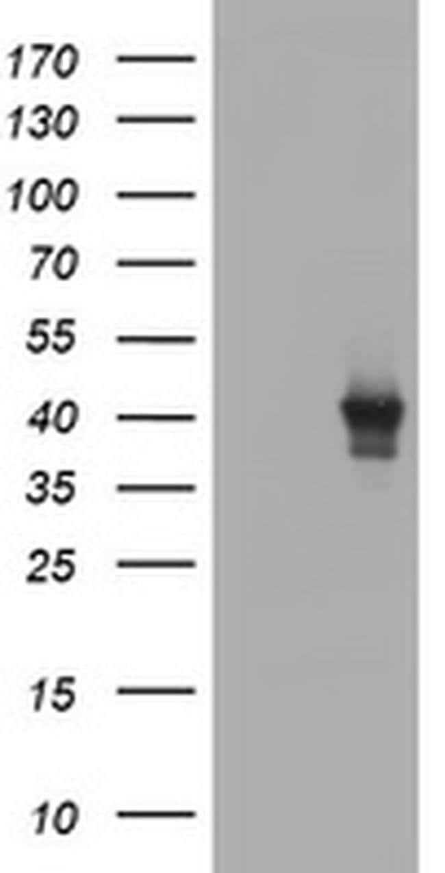 TBCC Mouse anti-Human, Mouse, Rat, Clone: OTI3A10, liquid, TrueMAB  100