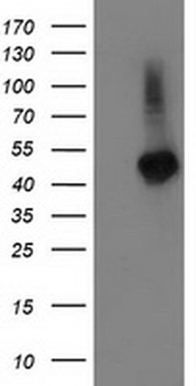 TBCEL Mouse anti-Human, Clone: OTI3H3, liquid, TrueMAB  100 µL; Unconjugated