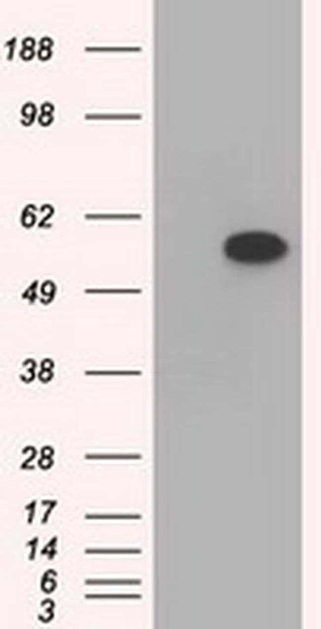 TBXAS Mouse anti-Human, Clone: OTI1A12, liquid, TrueMAB  100 µL; Unconjugated