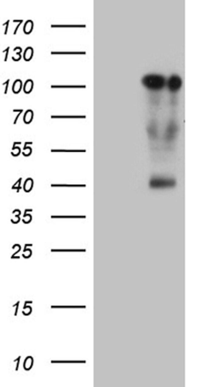 TCF12 Mouse anti-Human, Clone: OTI1F11, lyophilized, TrueMAB  100 µg;
