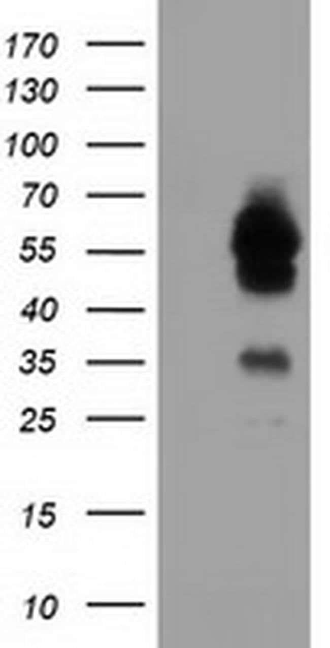 TCP11L2 Mouse anti-Human, Clone: OTI2F10, liquid, TrueMAB  100 µL;