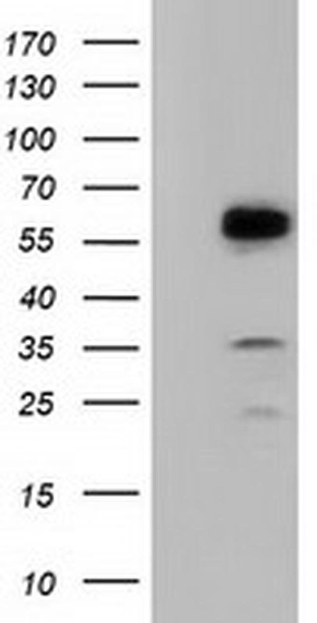 TCP11L2 Mouse anti-Human, Clone: OTI1F4, liquid, TrueMAB  100 µL;