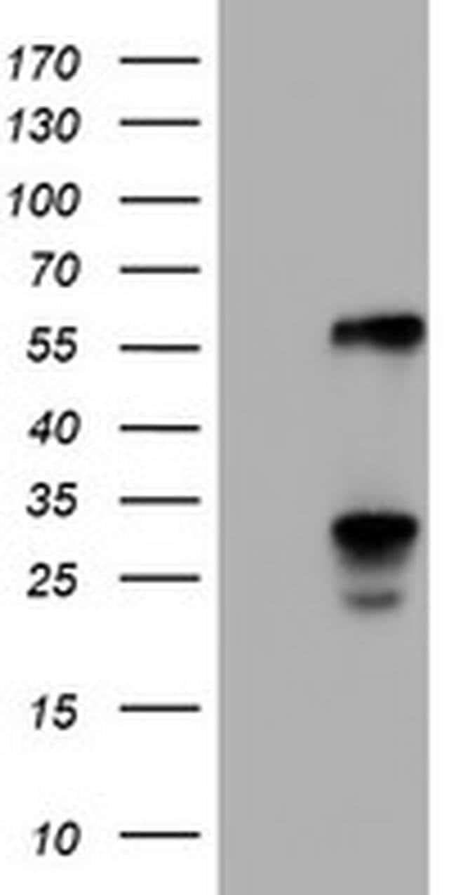 TCP11L2 Mouse anti-Human, Clone: OTI2H4, liquid, TrueMAB  100 µL;