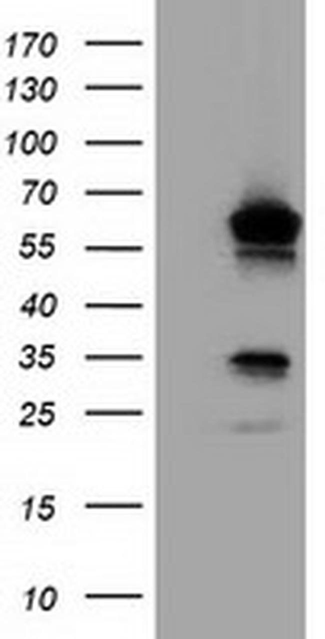 TCP11L2 Mouse anti-Human, Clone: OTI1G3, liquid, TrueMAB  100 µL;