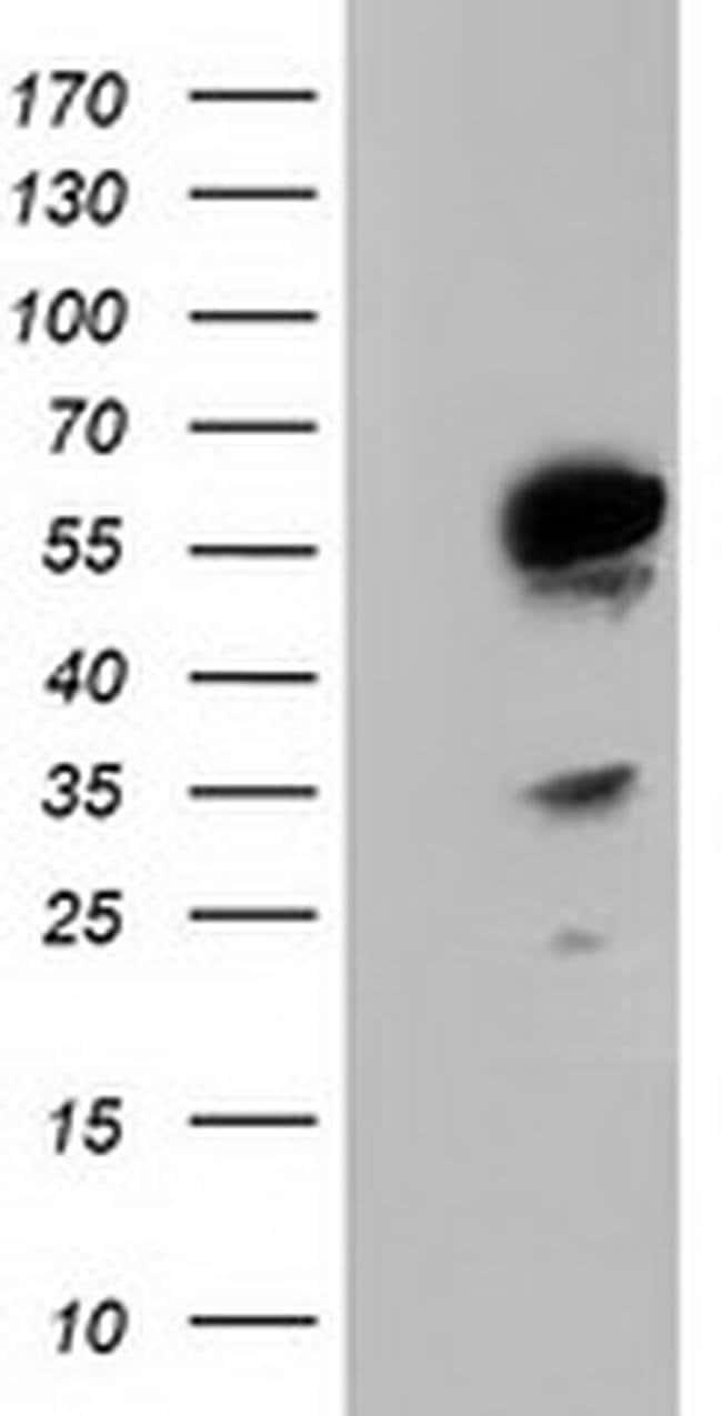 TCP11L2 Mouse anti-Human, Clone: OTI1H7, liquid, TrueMAB  100 µL;
