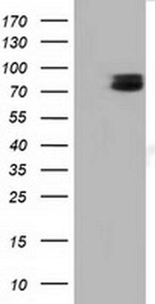 TCTN2 Mouse anti-Human, Clone: OTI1C1, liquid, TrueMAB  100 µL; Unconjugated
