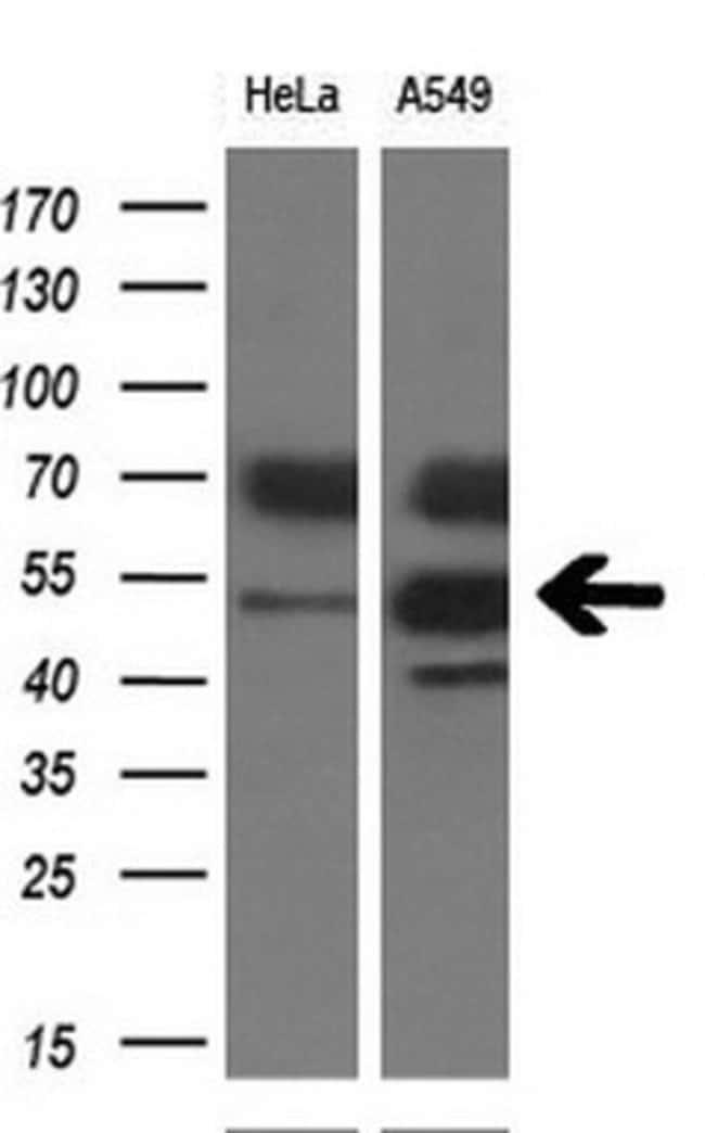 TDO2 Mouse anti-Human, Clone: OTI4G2, liquid, TrueMAB  100 µL; Unconjugated