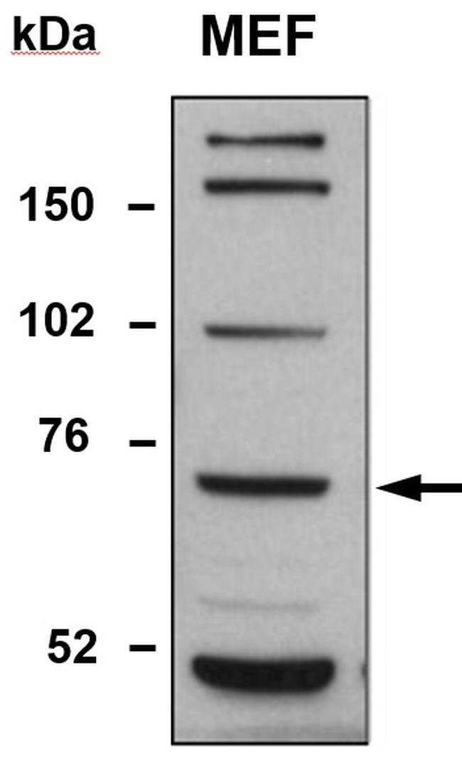 TDP1 Rabbit anti-Human, Polyclonal, Invitrogen 100 µL; Unconjugated