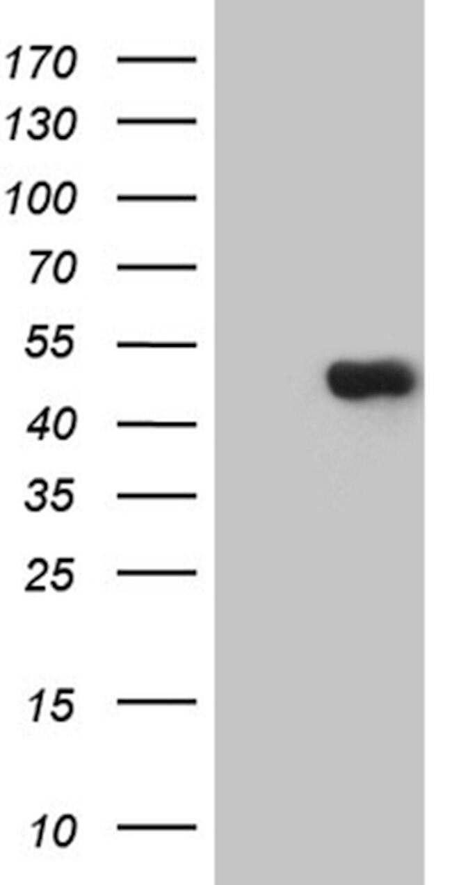 TEKT2 Mouse anti-Human, Clone: OTI1E6, lyophilized, TrueMAB  100 µg;