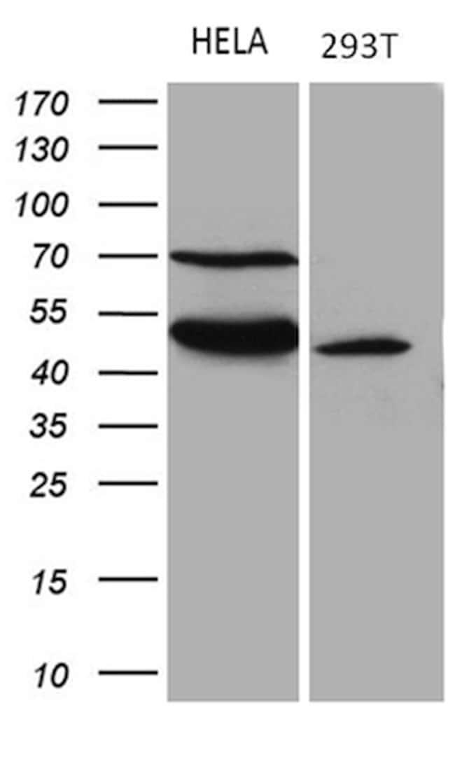 TEKT2 Mouse anti-Human, Clone: OTI1E11, lyophilized, TrueMAB  100 µg;