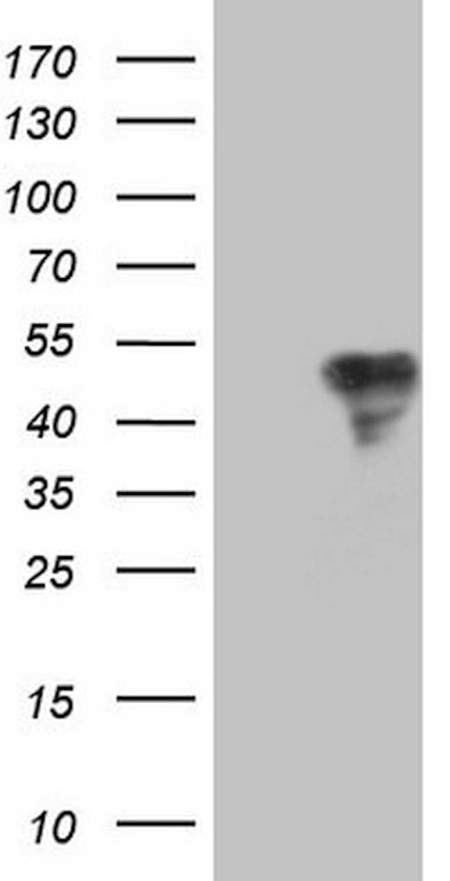 TFPI Mouse anti-Human, Clone: OTI4H9, lyophilized, TrueMAB  100 µg;