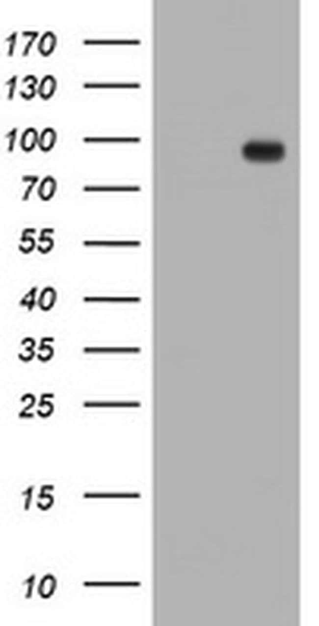 TFR2 Mouse anti-Human, Clone: OTI1D8, liquid, TrueMAB  100 µL; Unconjugated