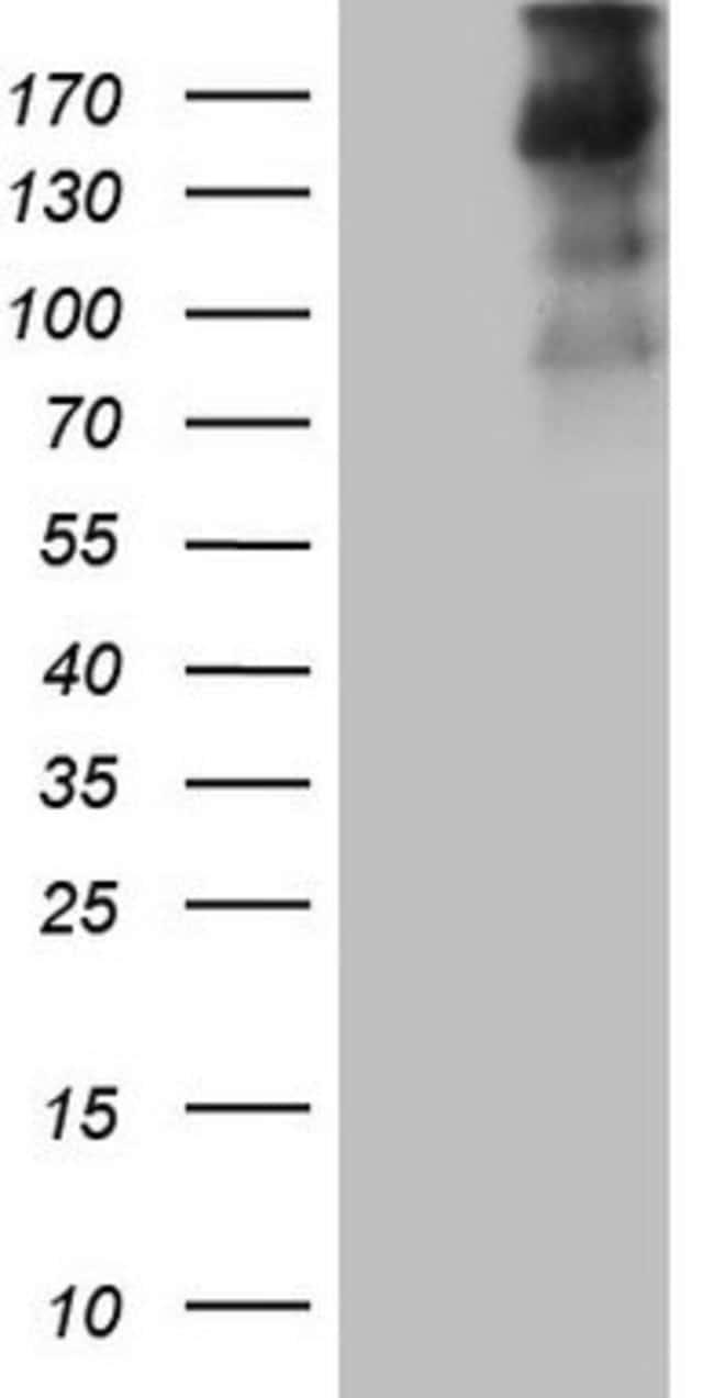 TG Mouse anti-Human, Clone: OTI8E4, lyophilized, TrueMAB  100 µg;