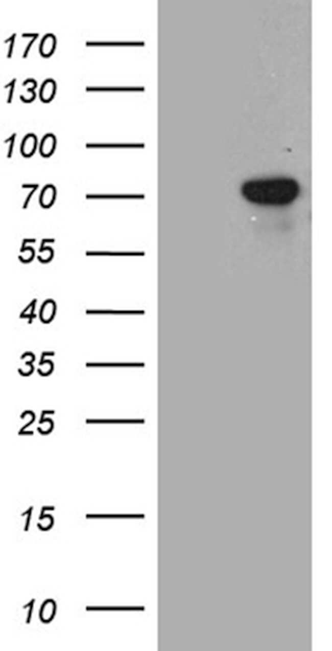 TGFBI Mouse anti-Human, Clone: OTI9A11, lyophilized, TrueMAB  100 µg;