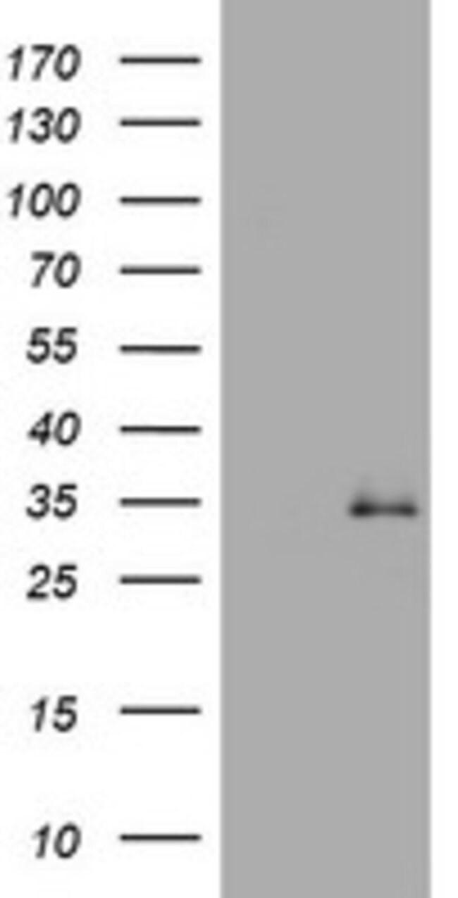 TGIF1 Mouse anti-Human, Clone: OTI1H3, lyophilized, TrueMAB  100 µg;