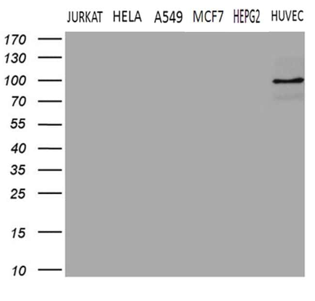 TGM2 Mouse anti-Human, Clone: OTI1C4, lyophilized, TrueMAB  100 µg;