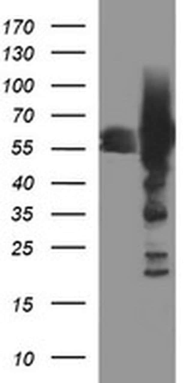 TH Mouse anti-Human, Clone: OTI1A12, liquid, TrueMAB  100 µL; Unconjugated