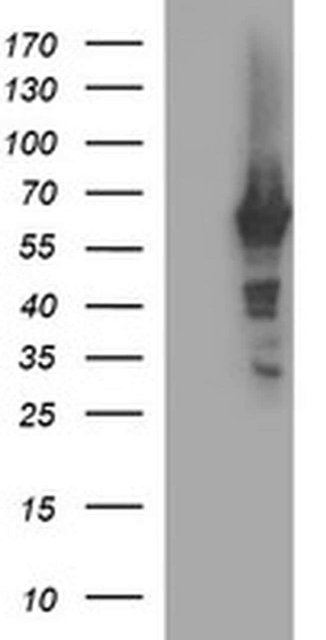 TH Mouse anti-Human, Clone: OTI2E6, liquid, TrueMAB  100 µL; Unconjugated
