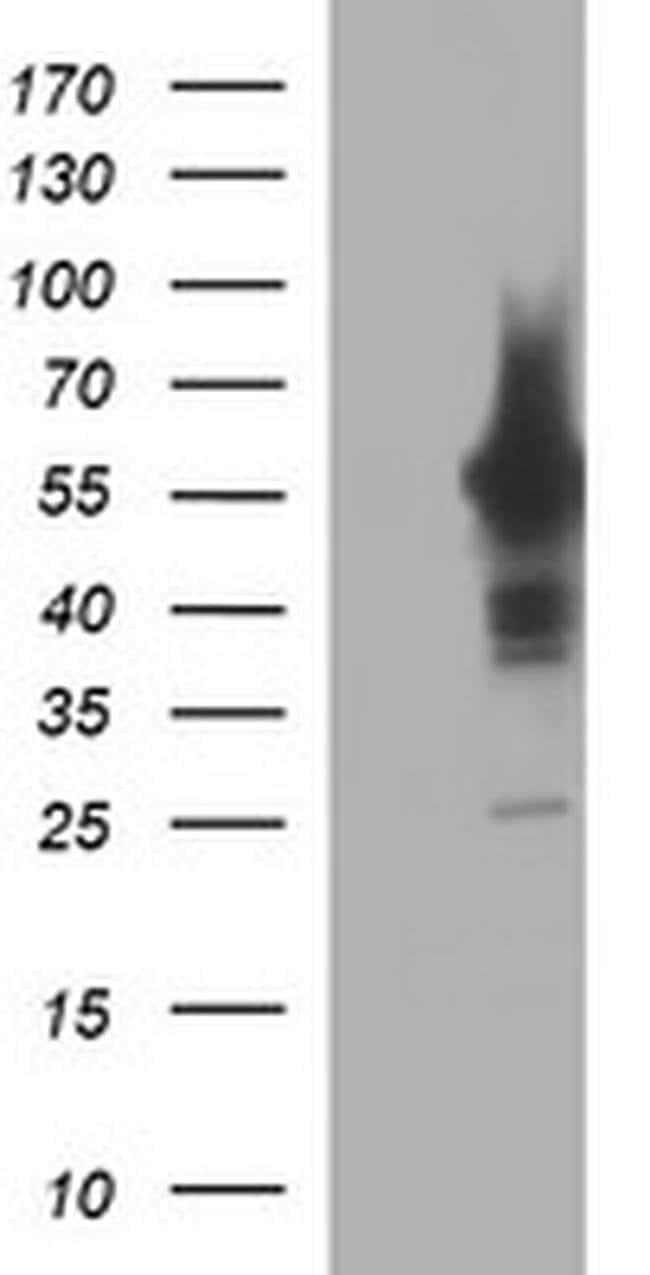 TH Mouse anti-Human, Clone: OTI3G3, liquid, TrueMAB  100 µL; Unconjugated