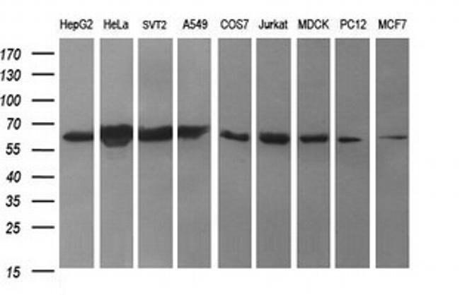 TH Mouse anti-Human, Clone: OTI2D4, liquid, TrueMAB  100 µL; Unconjugated