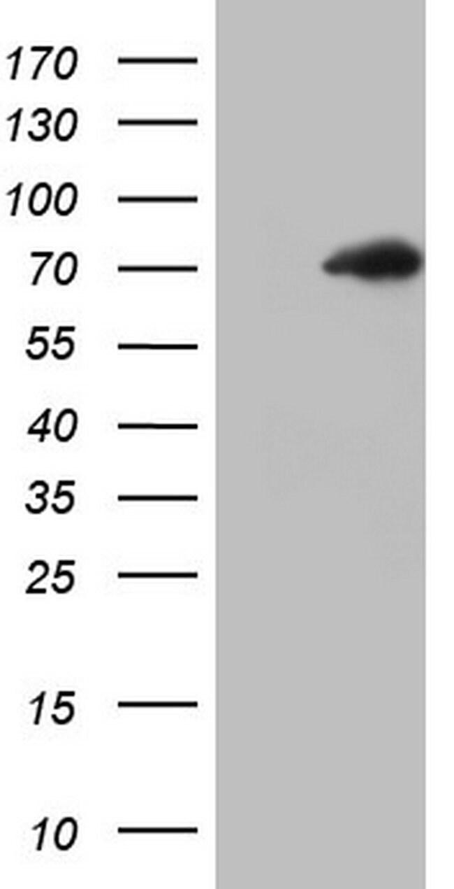 THRA Mouse anti-Human, Clone: OTI5C12, lyophilized, TrueMAB  100 µg;