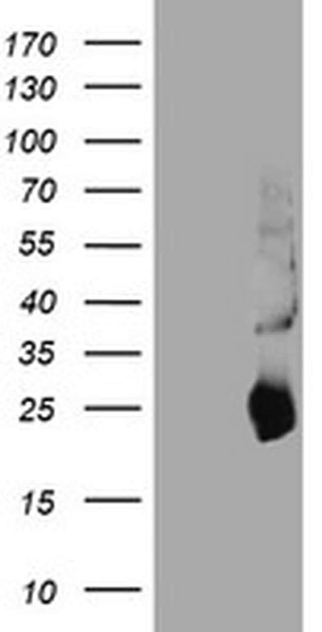 TIMP2 Mouse anti-Canine, Human, Mouse, Rat, Clone: OTI1D7, liquid, TrueMAB