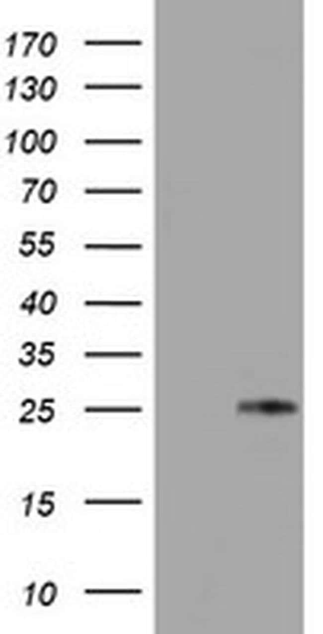 TIMP2 Mouse anti-Human, Clone: OTI3G7, liquid, TrueMAB  100 µL; Unconjugated