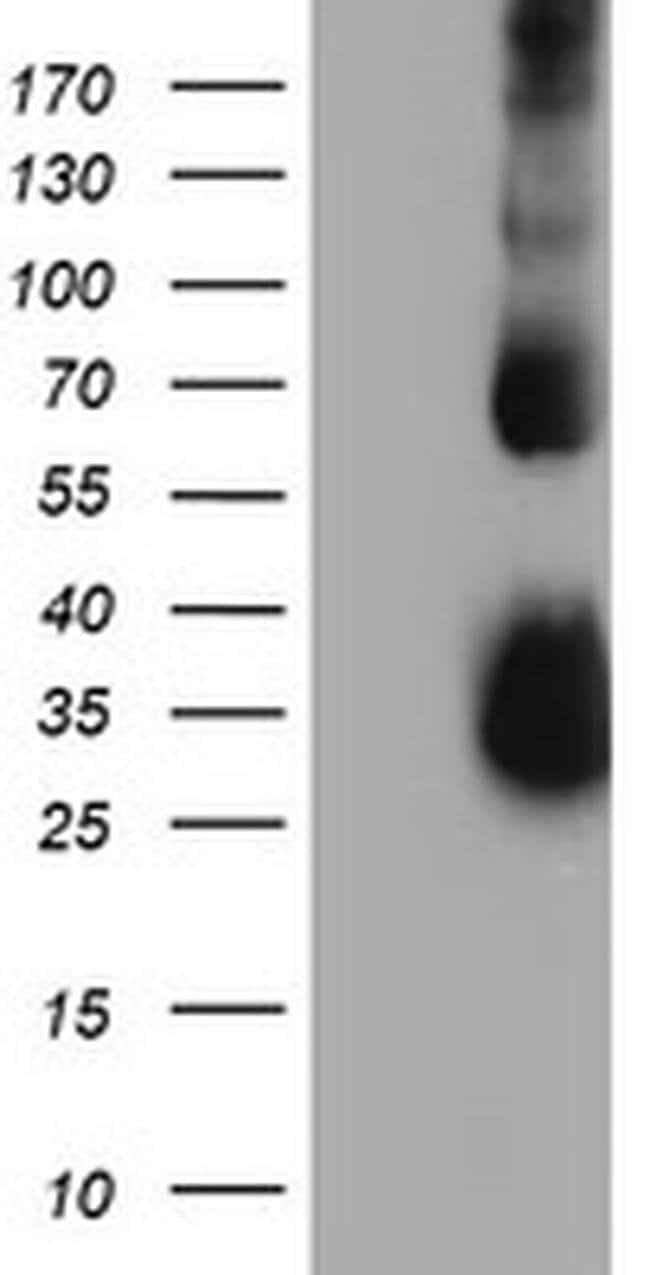 TIMP2 Mouse anti-Human, Clone: OTI1C4, liquid, TrueMAB  100 µL; Unconjugated
