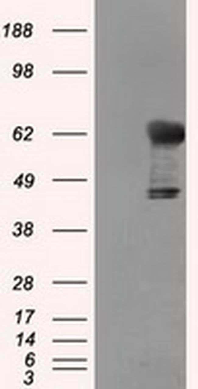 TKT Mouse anti-Human, Clone: OTI5H3, liquid, TrueMAB  100 µL; Unconjugated
