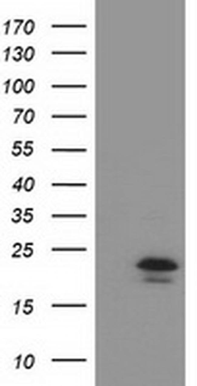 TMED1 Mouse anti-Human, Clone: OTI7G4, liquid, TrueMAB  100 µL; Unconjugated