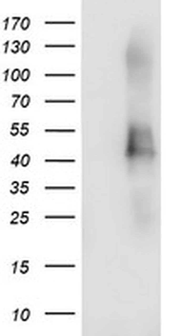 TMEFF2 Mouse anti-Human, Clone: OTI3D1, liquid, TrueMAB  100 µL; Unconjugated