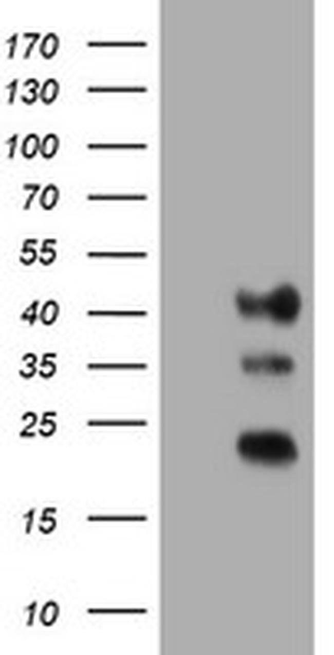 TMEM173 Mouse anti-Human, Clone: OTI2C8, liquid, TrueMAB  100 µL;