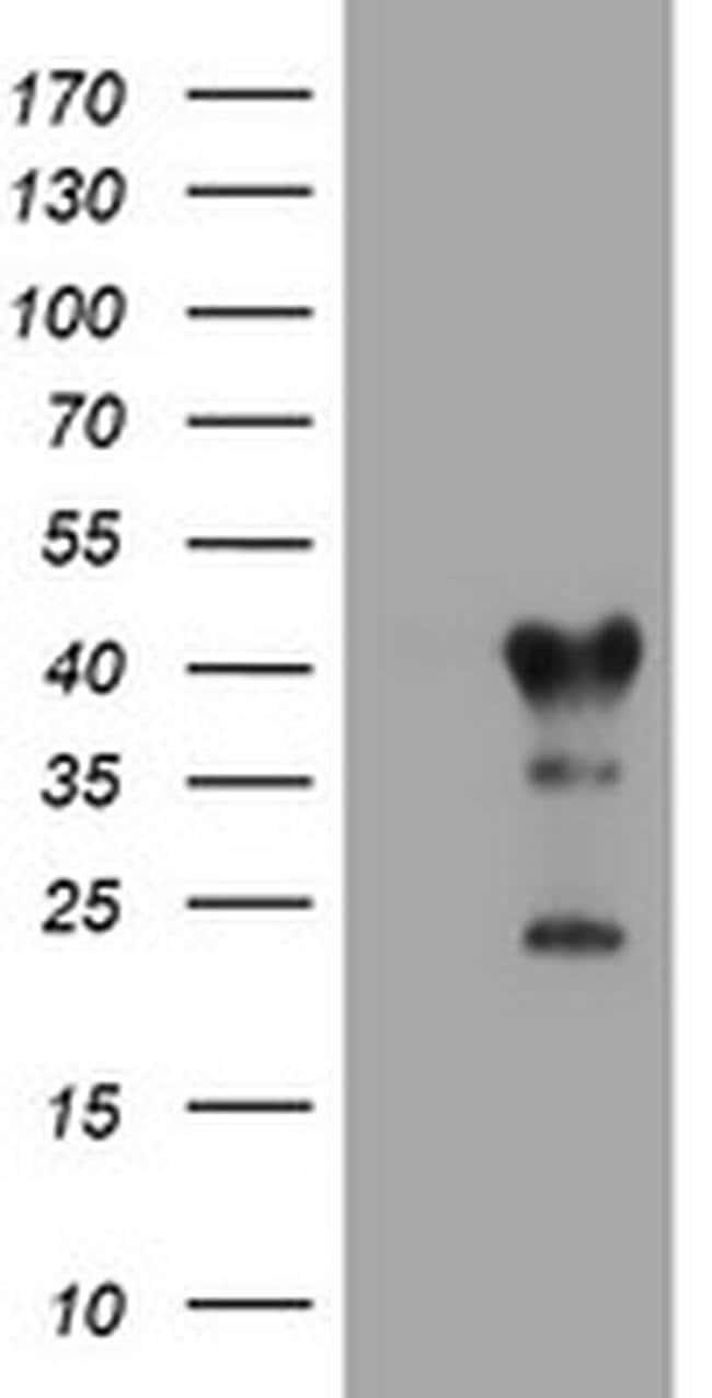 TMEM173 Mouse anti-Human, Clone: OTI4A7, liquid, TrueMAB  100 µL;