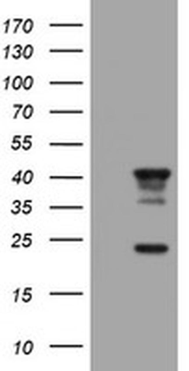 TMEM173 Mouse anti-Human, Clone: OTI4E12, liquid, TrueMAB  30 µL;