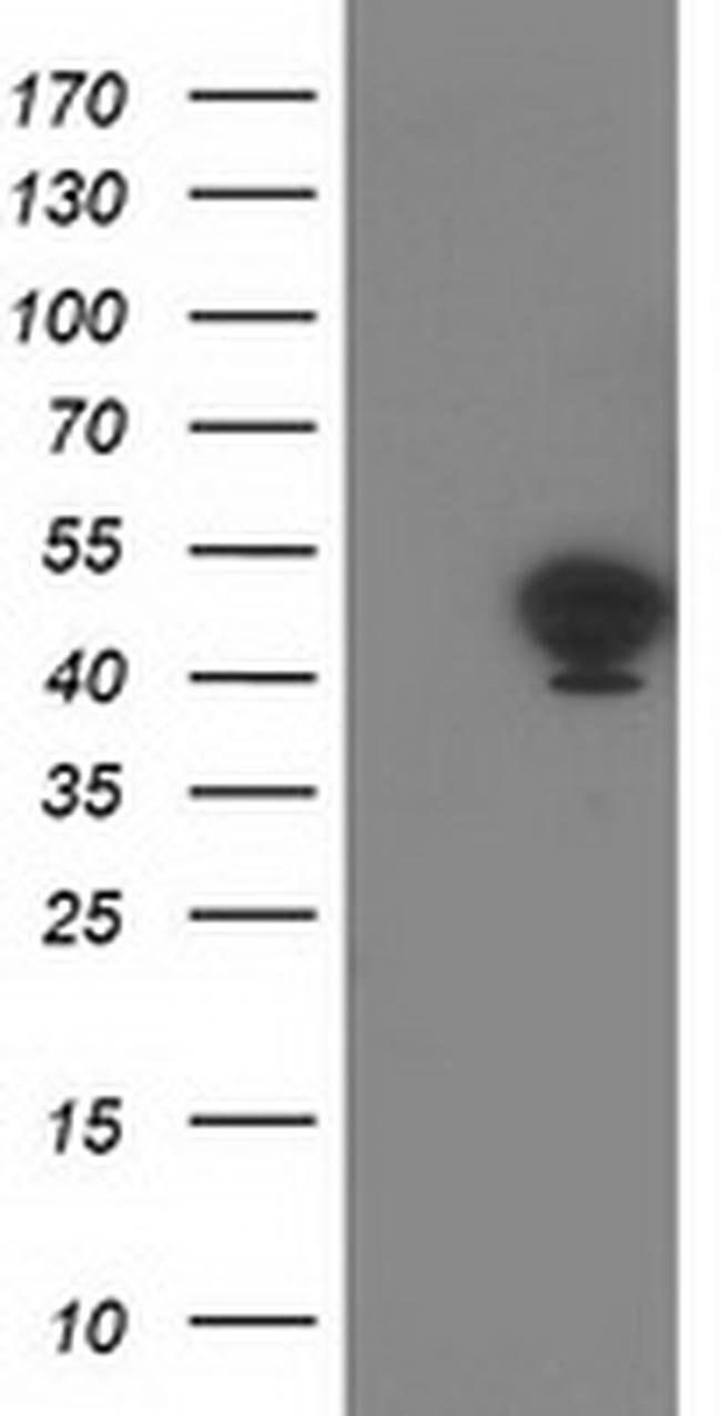 TMOD1 Mouse anti-Human, Clone: OTI5F8, liquid, TrueMAB  100 µL; Unconjugated