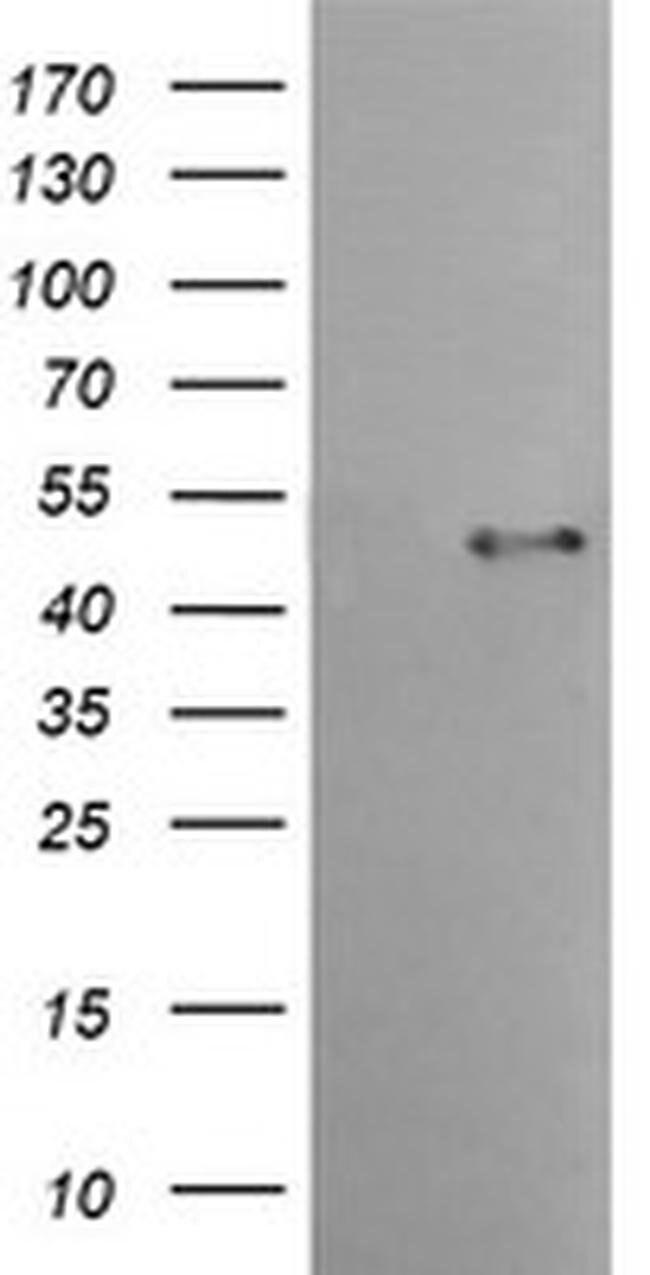 TMPRSS5 Mouse anti-Human, Clone: OTI4G4, liquid, TrueMAB  100 µL;