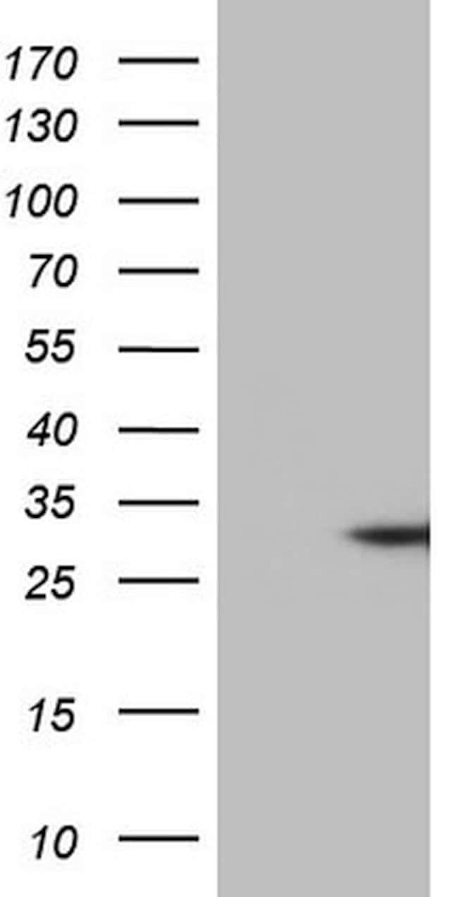 TNFA Mouse anti-Human, Clone: OTI3H10, lyophilized, TrueMAB  100 µg;