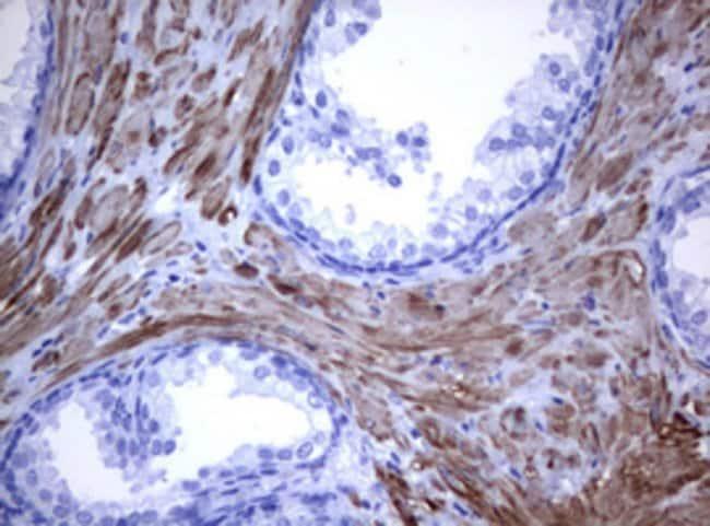 TNFRSF8 Mouse anti-Human, Clone: OTI9H7, lyophilized, TrueMAB  100 µg;