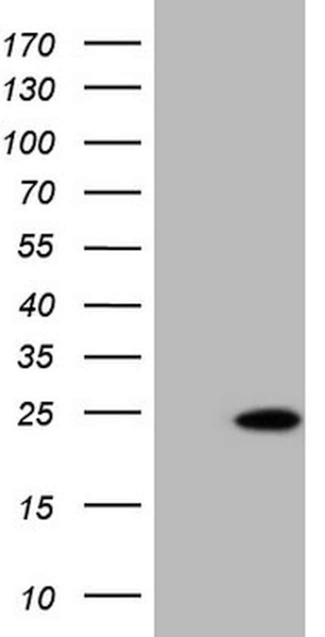 TNNI2 Mouse anti-Human, Clone: OTI3A11, lyophilized, TrueMAB  100 µg;