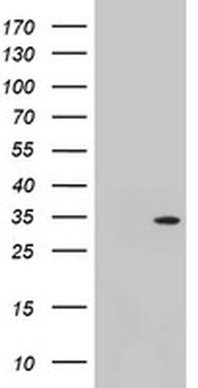 TOMM34 Mouse anti-Human, Clone: OTI2D8, liquid, TrueMAB  100 µL; Unconjugated