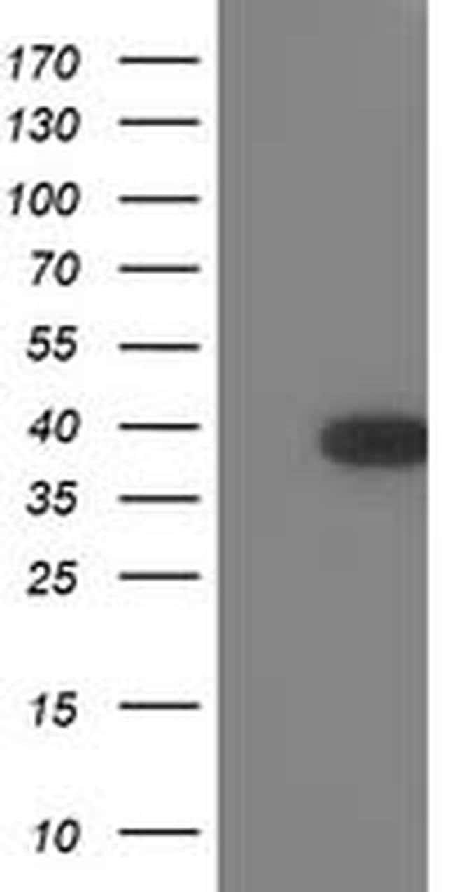 TOMM34 Mouse anti-Human, Clone: OTI2A6, liquid, TrueMAB  100 µL; Unconjugated