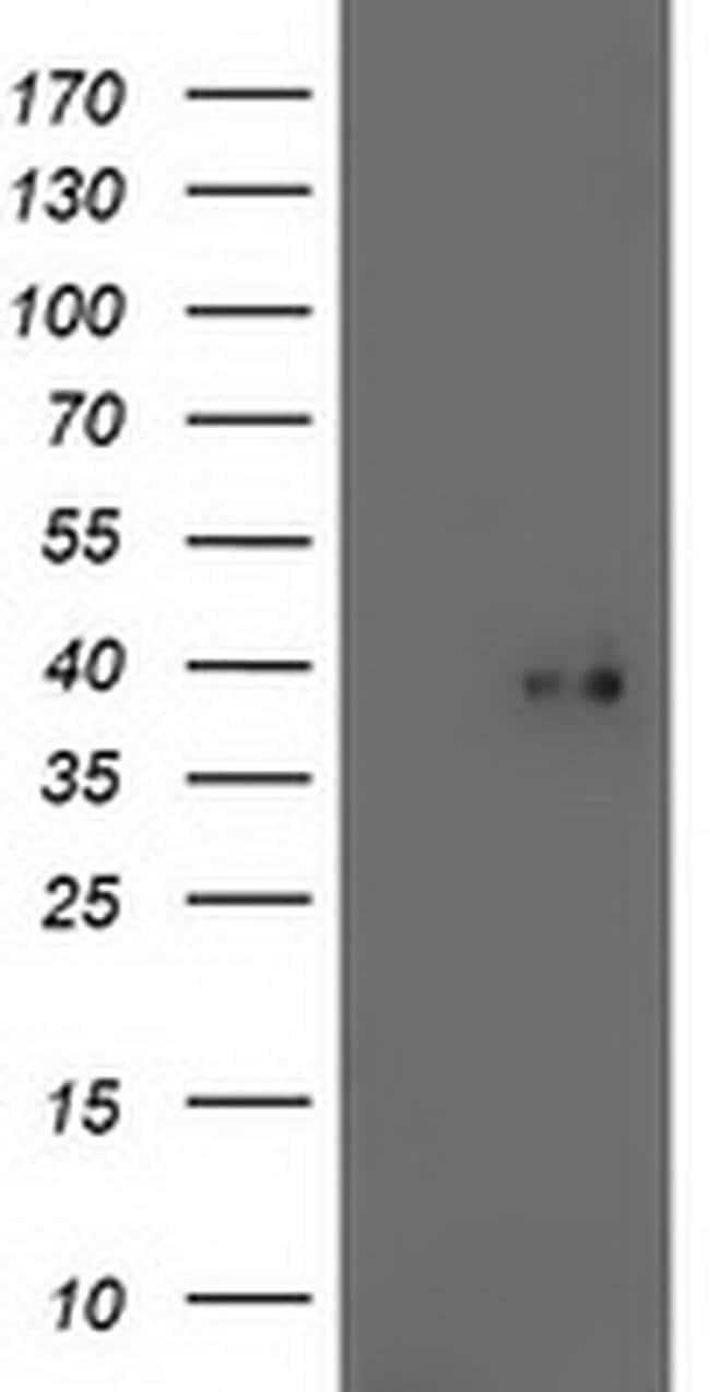 TOMM34 Mouse anti-Human, Clone: OTI2B5, liquid, TrueMAB  100 µL; Unconjugated