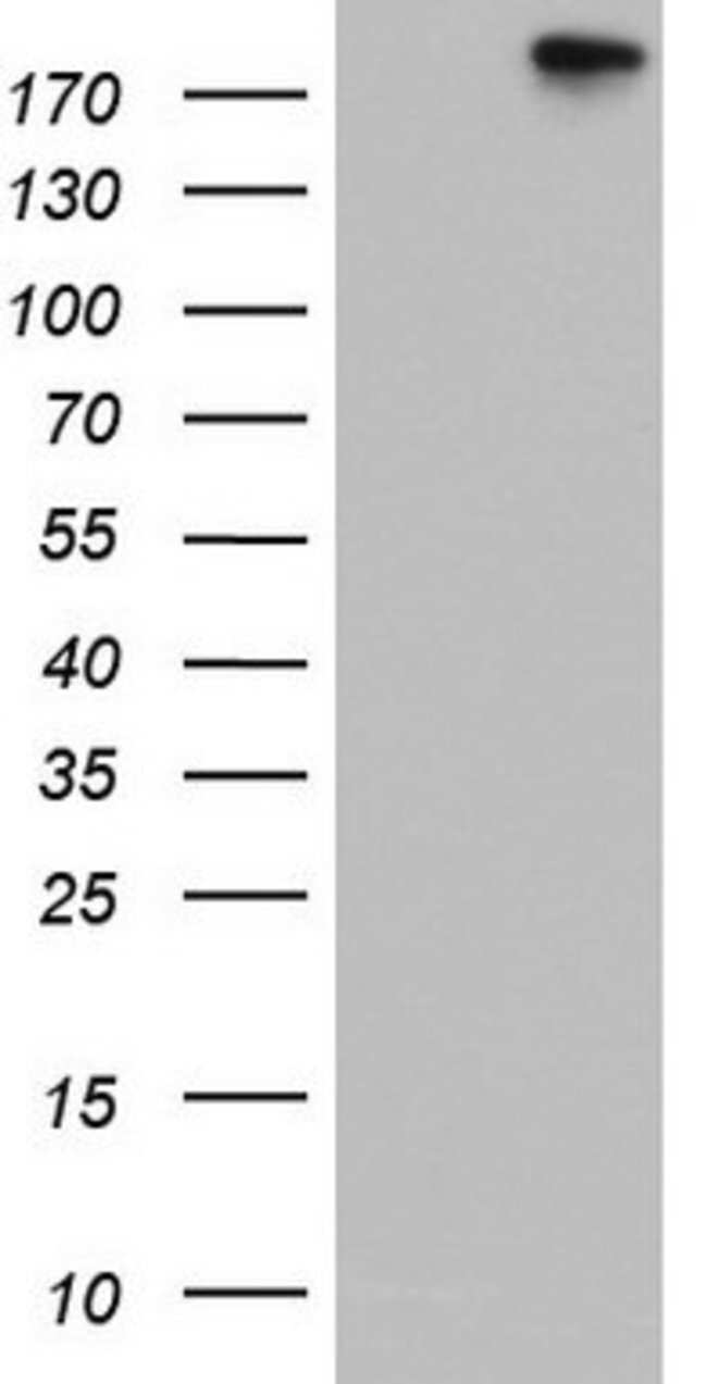 TOP2A Mouse anti-Human, Clone: OTI5E6, lyophilized, TrueMAB  100 µg;